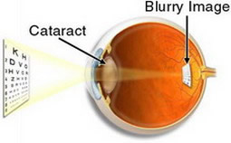 Cataract showing blurry image
